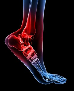 child-ankle-pain-causes-treatments-245x300